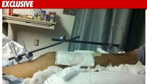 'Camp Rock 2' Star -- I SNAPPED My Shin Bones