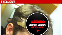 'Avengers' Stuntman -- SCALPED During 30-Foot Fall