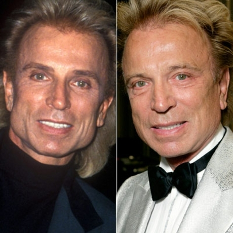 "Siegfried -- as in, ""...& Roy"" -- and his feline features were as supple in 2007 as they were in 1993."