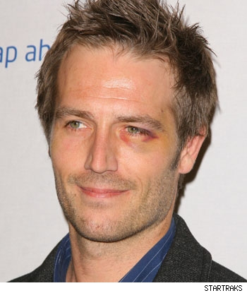 Michael Vartan gets a black eye