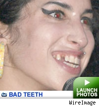 Bad Teeth Gallery: Click to launch photos