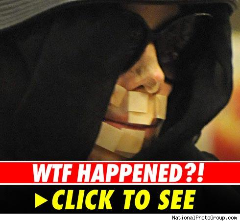 Michael Jackson's bandaged face -- see photos