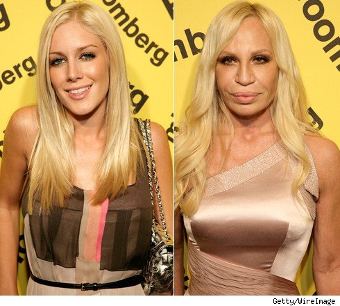donatella versace plastic surgery. Heidi Montag and Donatella