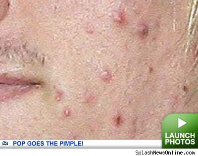 Pop Goes The Pimple -- click to launch