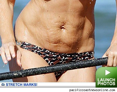 Stretch Marks -- click to launch