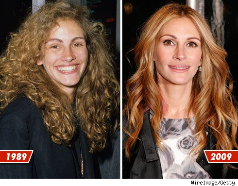 Julia Roberts before and after picture comparison - plastic surgery