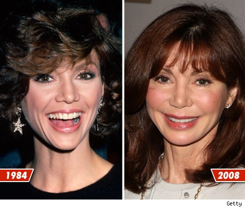 Victoria Principal before and after surgery? 1984 and 2008 (image hosted by tmz.com)