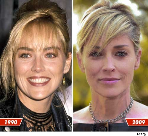 Sharon Stone before and after pictures (image hosted by tmz.com)