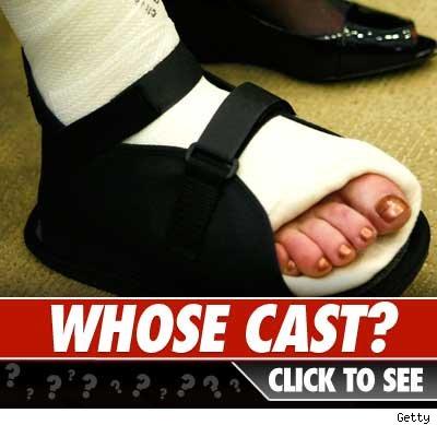 Whose cast?