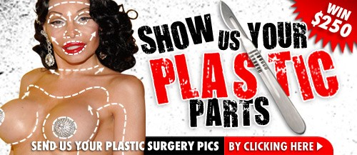 TMZ Send Us Your Plastic Parts