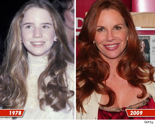 Melissa Gilbert plastic surgery before and after? (image hosted by tmz.com)