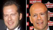 Bruce Willis: Good Genes or Good Docs?