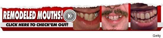 0628_teeth_300