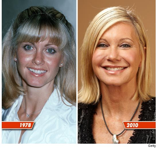 Olivia Newton-John before and after pictures 1978 - 2010 (image hosted by tmz.com)