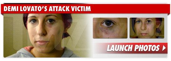 1223_demi_lovato_attack_victim_footer