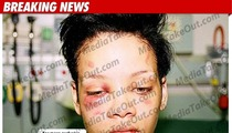 Brutal Rihanna Photos Surface
