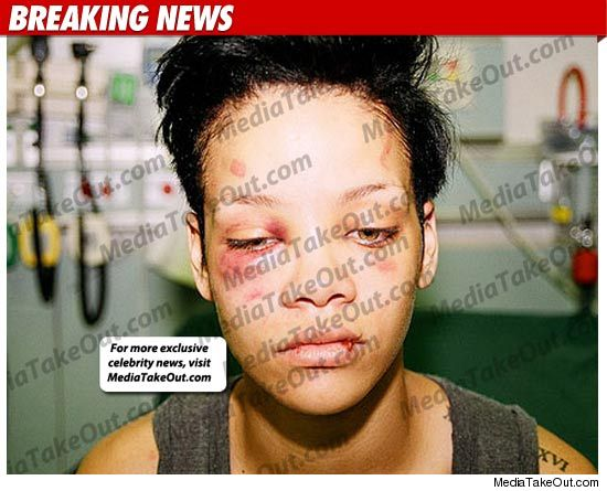 Rihanna Abuse Photos