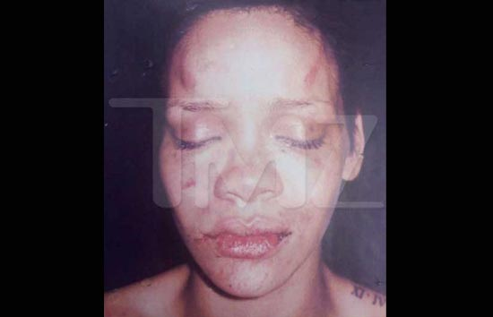 022411_rihanna_battered_tmz