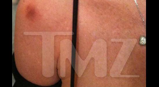 0405_alicia_injury_TMZ