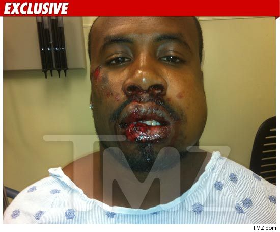 Clavens Charles abuse photo -- allegedly attacked by Cedric Benson