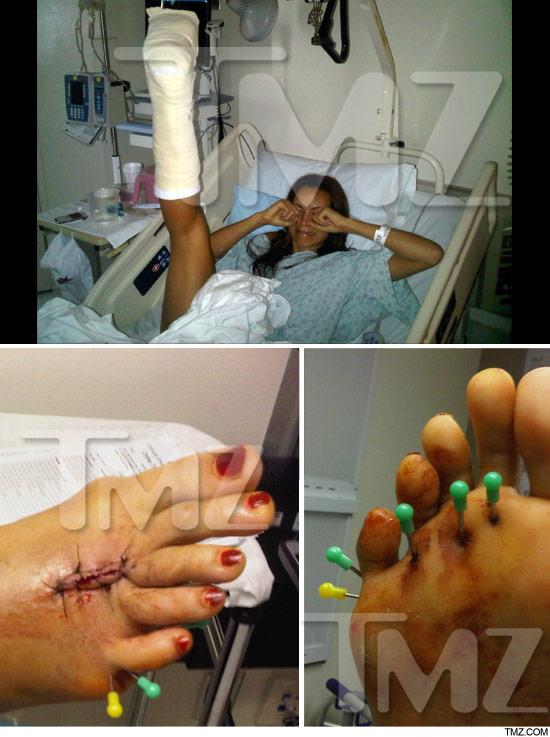 0721_sarah_foot_injury_tmz