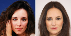 Madeleine Stowe: Good Genes or Good Docs?