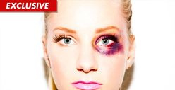 'Glee' Star -- Bruising Photo to Help Domestic Violence Victims
