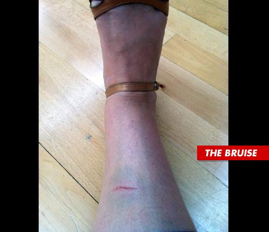 0908_ricki_the_bruise