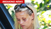 Reese Witherspoon -- Big Black Eye After Car Accident