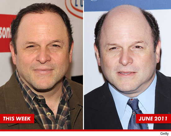 0923_jason_alexander_hair_growth_week