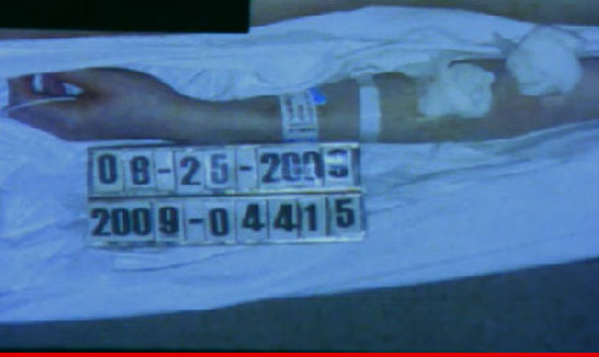 http://ll-media.tmz.com/2011/10/11/1011-michael-jackson-arm.jpg