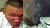 WWE Star Randy Orton -- GAPING Head Wound Stapled Shut ... On Tape!!!