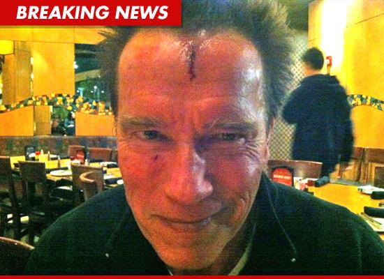 Arnold Schwarzenegger bloody head