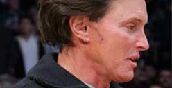 Bruce Jenner -- I'm Scarred from Skin Cancer