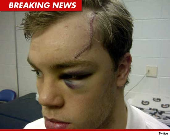 Taylor Hall head scar