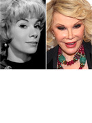 "Joan Rivers Documents Her ""734th"" Plastic Surgery!"