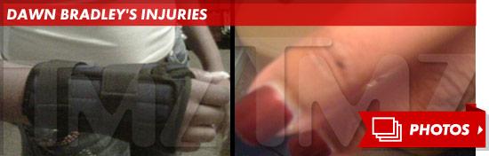 0129_Dawn-Bradley's-Injuries_sub_launch