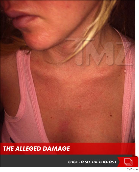 Ashley Mattingly bruised -- abuse photo