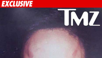 Rihanna -- The Face of a Battered Woman Abused by Chris Brown