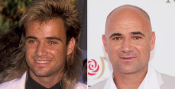 Andre Agassi: Good Genes or Good Docs?