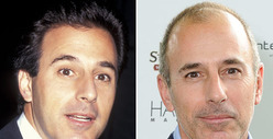 Matt Lauer: Good Genes or Good Docs?