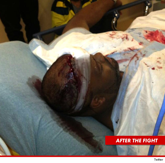 Chris Browns bodyguard Big Pat was also hospitalized.