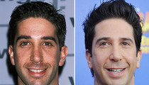 David Schwimmer: Good Genes or Good Docs?