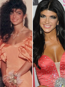 """Real Housewives"" Surgery Revealed -- See Before & After Pics!"