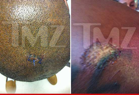DMX received stiches to his head.