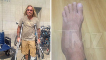 Vince Neil -- The Show Must Go On ... Even With My Broken Foot!