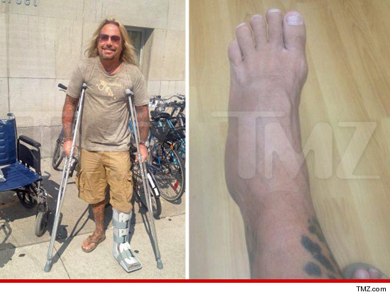0913-vince-neil-tmz-ankle