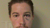 Shaun White Mug Shot -- One Big Black Eye