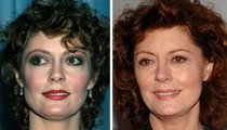 Susan Sarandon: Good Genes or Good Docs?