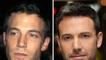 Ben Affleck -- Good Genes or Good Docs?